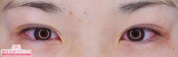 湘南美容クリニック大阪梅田院の目・二重の整形の症例写真[アフター]
