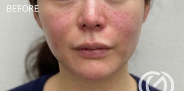 GLANZ CLINIC (グランツクリニック)の口もと、唇の整形の症例写真[ビフォー]