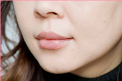 城本クリニックの口もと、唇の整形の症例写真[アフター]