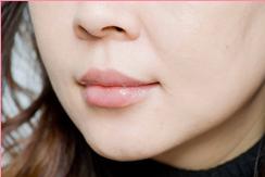 ■ヒアルロン酸注入(下唇)[アフター]