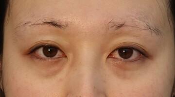 東京美容外科 名古屋院の目元整形・クマ治療の症例写真[ビフォー]