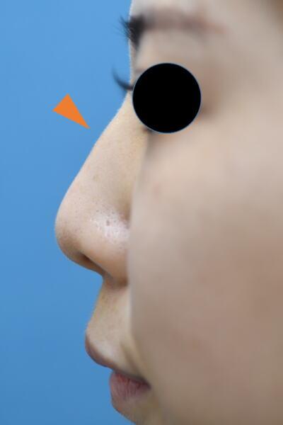 鼻中隔延長・ハンプ除去・鼻先縮小鼻のコンビネーション施術症例の症例写真[ビフォー]