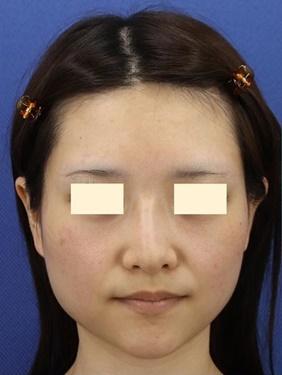 プロテーゼの入れ替え、鼻先の形成(肋軟骨)術後1ヶ月の症例写真[ビフォー]