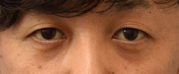 スキンクリニック藤枝の目元の整形、くま治療の症例写真[ビフォー]