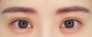 湘南美容クリニック武蔵小杉院の目・二重の整形の症例写真[アフター]