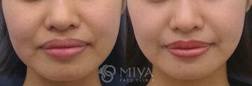MIYAフェイスクリニックのニキビ治療・ニキビ跡の治療の症例写真
