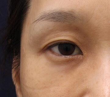 の目元整形・クマ治療の症例写真[アフター]