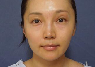 よこはまエーブクリニックの顔の整形(輪郭・顎の整形)の症例写真[ビフォー]