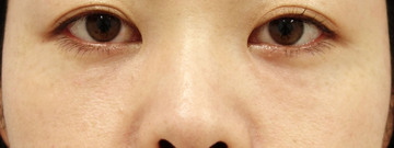 湘南美容クリニック 渋谷院の目元整形・クマ治療の症例写真[アフター]