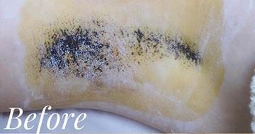 表参道スキンクリニックのわきが手術・多汗症治療の症例写真[ビフォー]