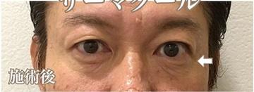 西宮SHUHEI美容クリニックのシワ・たるみ(照射系リフトアップ治療)の症例写真[アフター]