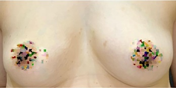東京ミッドクリニックの豊胸・胸の整形の症例写真[ビフォー]