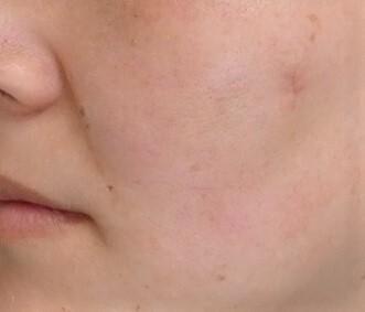 TCB 東京中央美容外科のホクロ除去・あざ治療・イボ治療の症例写真[アフター]