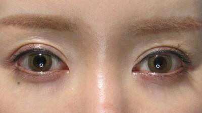 涙袋のヒアルロン酸注入で優しい目元にの症例写真[ビフォー]