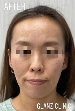 GLANZ CLINIC (グランツクリニック)のほくろ除去・あざ治療・イボ治療の症例写真[アフター]