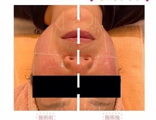 とりい皮膚科クリニックのリフトアップレーザーの症例写真