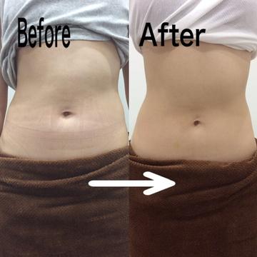 リアラクリニックの痩身、メディカルダイエットの症例写真