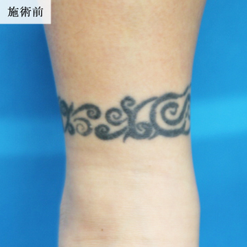 エースクリニックのタトゥー除去(刺青・入れ墨を消す治療)の症例写真[ビフォー]