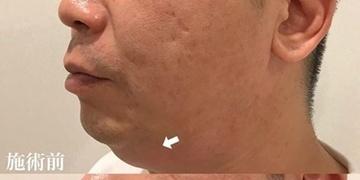 KOBE CLINIC 美容皮膚科・美容クリニックのリフトアップレーザーの症例写真[ビフォー]