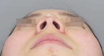 品川美容外科 渋谷院の鼻の整形の症例写真[アフター]