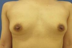 城本クリニックの乳首・乳輪の整形の症例写真[アフター]
