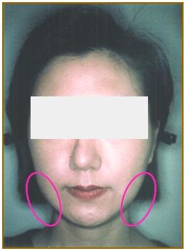 共立美容外科・歯科の脂肪吸引の症例写真[アフター]