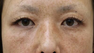 二重切開法(隆鼻術)の症例写真[ビフォー]