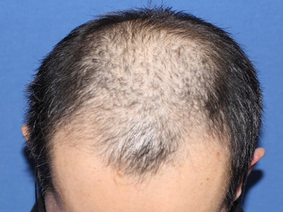 メスを使わない、切らない自毛植毛「MIRAI法」1,400株の症例写真[ビフォー]