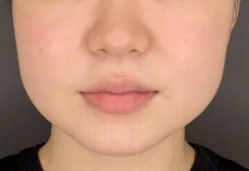 の輪郭・顎の整形の症例写真[ビフォー]