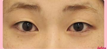 湘南美容クリニック熊本院の目・二重の整形の症例写真[ビフォー]