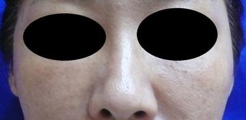 広島プルミエクリニックの鼻の整形の症例写真[アフター]