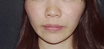 SELECT CLINIC(セレクトクリニック)の顔のしわ・たるみの整形(リフトアップ手術)の症例写真[アフター]