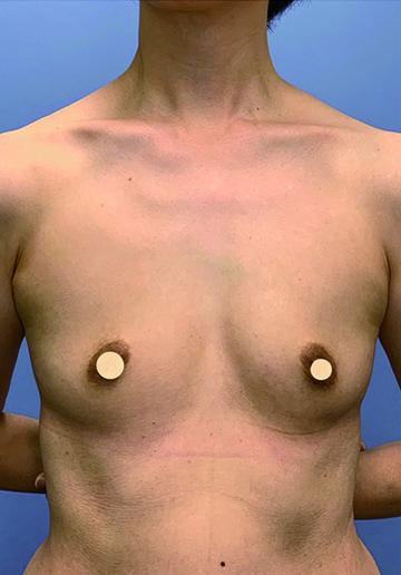 湘南美容クリニック 金沢院の豊胸手術(胸の整形)の症例写真[ビフォー]