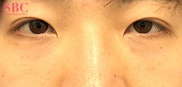 湘南美容クリニック 岡山院の目元の整形、くま治療の症例写真[アフター]
