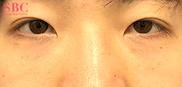 湘南美容クリニック岡山院の目元の整形、くま治療の症例写真[アフター]
