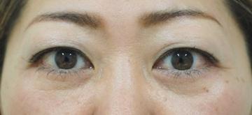 タウン形成外科クリニックの目元整形・クマ治療の症例写真[アフター]
