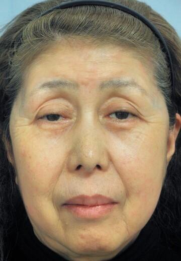 新宿美容外科クリニックの顔のしわ・たるみの整形(リフトアップ手術)の症例写真[ビフォー]