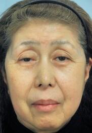新宿美容外科クリニックの症例写真[ビフォー]