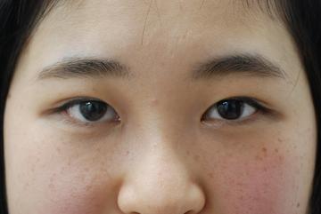 みずほクリニックの目・二重の整形の症例写真[アフター]