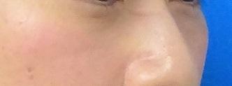 TCB 東京中央美容外科の目元の整形、くま治療の症例写真[アフター]