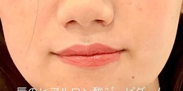 ルラ美容クリニック高田馬場院の口もと、唇の整形の症例写真[ビフォー]