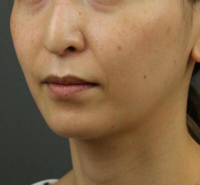 Vライン小顔リフト(糸リフト+アゴヒアルロン酸注射)の症例写真[ビフォー]