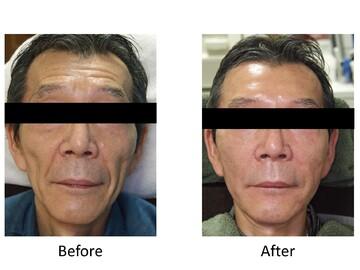 のシワ・たるみ(照射系リフトアップ治療)の症例写真