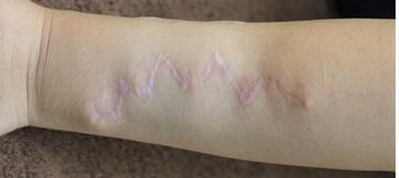 千葉中央美容形成クリニックの傷跡治療、ケロイドの症例写真[アフター]