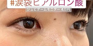 ルラ美容クリニック 高田馬場院の目元の整形、くま治療の症例写真[アフター]