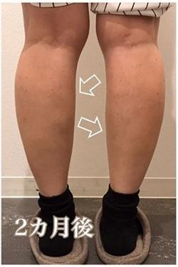 西宮SHUHEI美容クリニックの痩身、メディカルダイエットの症例写真[アフター]