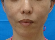 東京中央美容外科・美容皮膚科の顔のしわ・たるみの整形(リフトアップ手術)の症例写真[アフター]