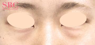 湘南美容クリニック高松院の目元の整形、くま治療の症例写真[ビフォー]