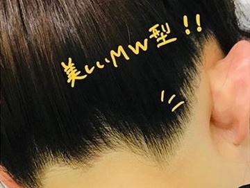 ベレッサ明石美容クリニックの医療レーザー脱毛の症例写真[アフター]