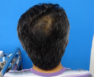 TCB 東京中央美容外科の薄毛治療・AGA・発毛の症例写真[ビフォー]